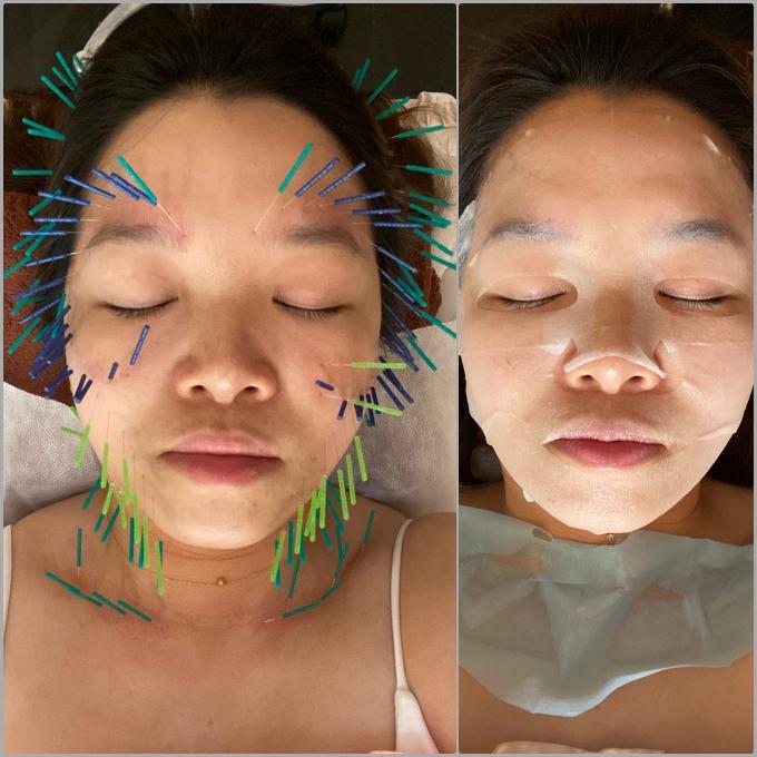 台北中醫美容分享:美顏針灸初體驗!筋膜放鬆/蘋果肌/暗沈/緊緻 @林飛比。玩美誌